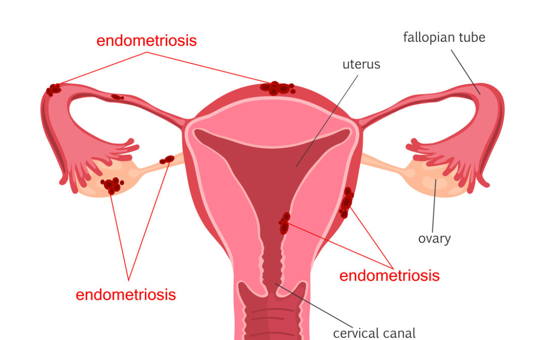 Endometriosis diagram. Diseases of the female reproductive system.