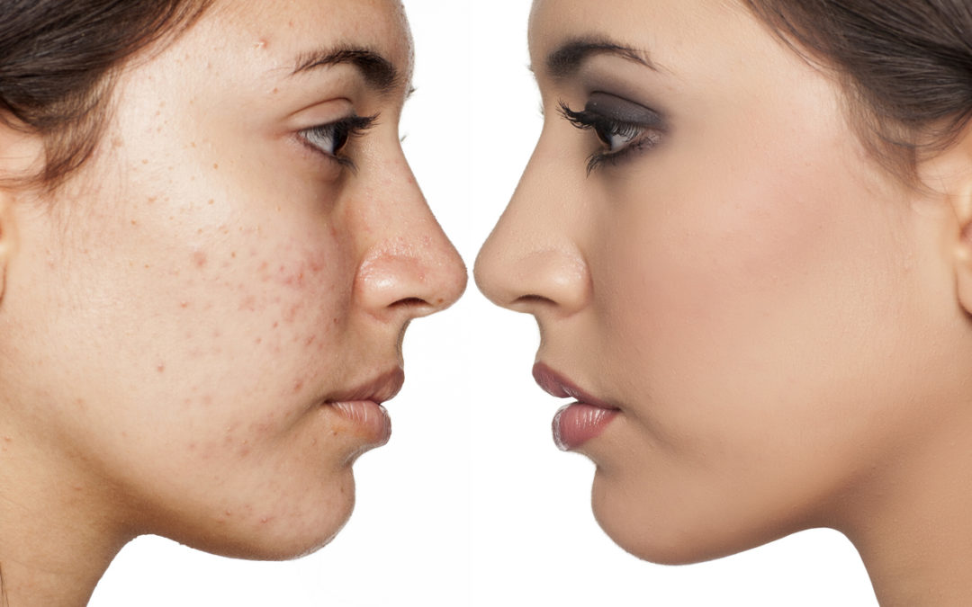 acne and pimples and how Chinese Medicine can help